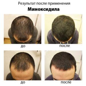 Миноксидил для роста волос: отзывы